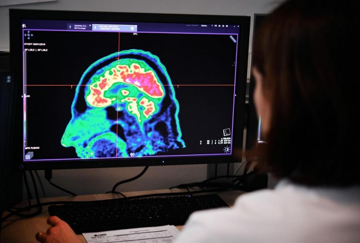 شباهت آب مغز و انرژی تاریک در چیست؟
