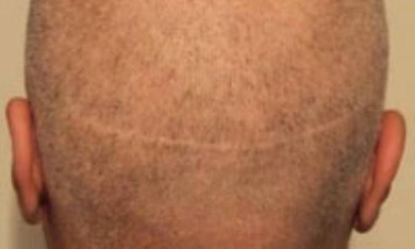 مو با تراشیدن، پرپشت خواهد شد؟